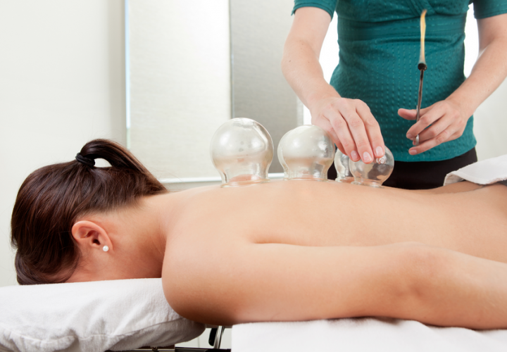 cupping therapy demystifying the circular bruises